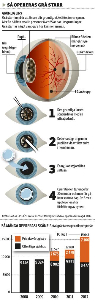 Om grå starr, Helsingborgs Dagblad.